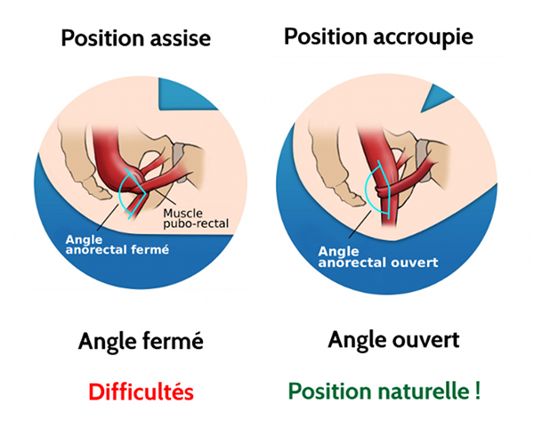 Comparatif positions aux toilettes